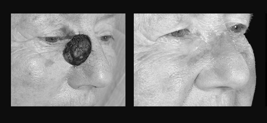 Lady with a post MOHs defect reconstructed with a cheek advancement flap