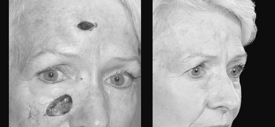 Lady with a post MOHs defect reconstructed with a cheek advancement flap and direct closure of the forehead