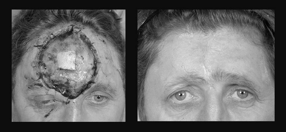 Young man with a post MOHs reconstruction with a forehead advancement and secondary intention healing