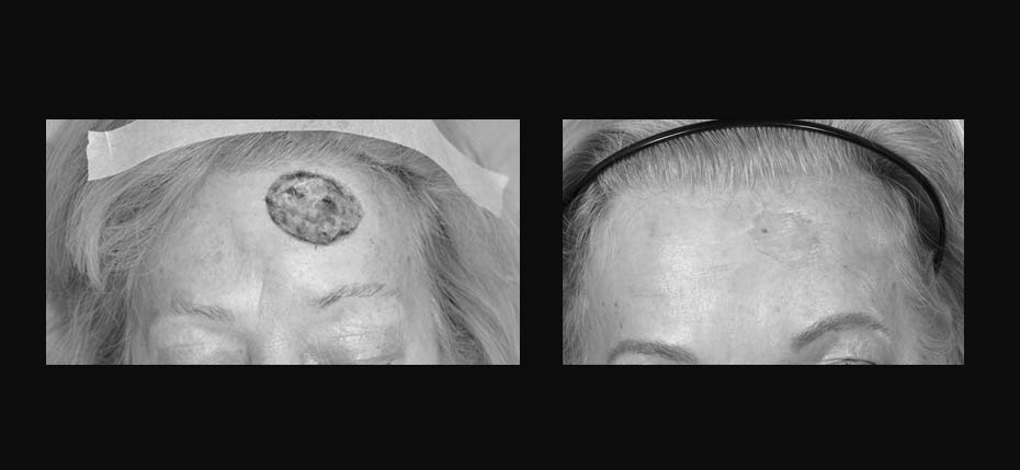 Lady with a MOHs defect following reconstruction with a full thickness skin graft
