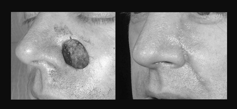 Young man with a post MOHs defect reconstructed with a cheek advancement flap