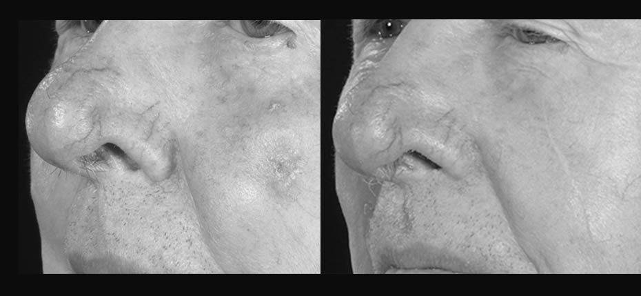 64 year old with basal cell cancer on his left cheek, excised and reconstructed with local flap advancement