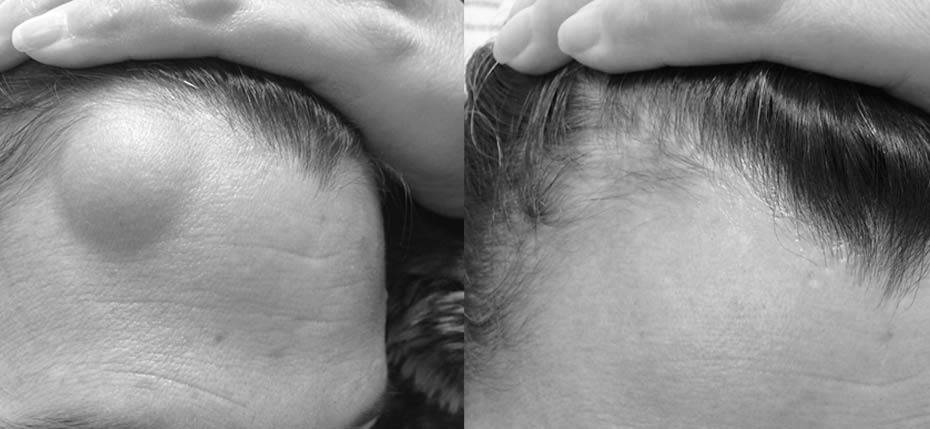 24 year old man with a submuscular lipoma on the forehead. This has been removed through a hairline incision