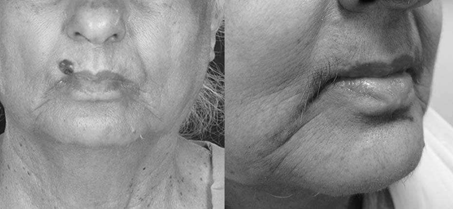 75 year old lady with a BCC excised and reconstructed with 3 local flaps