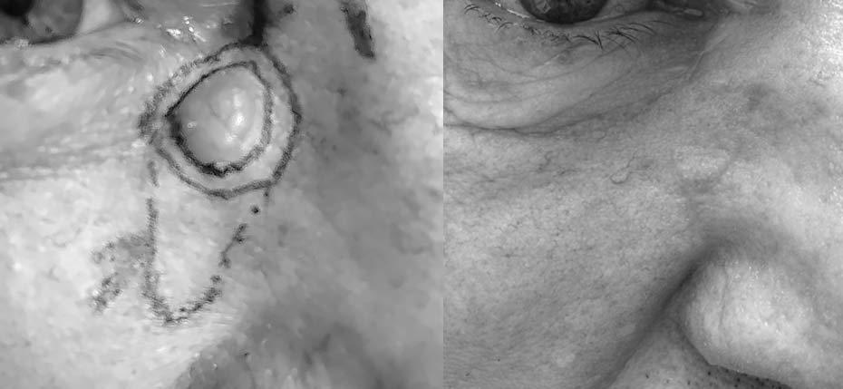 54 year old man with a skin cancer on his eyelid removed and reconstructed with 2 local flaps