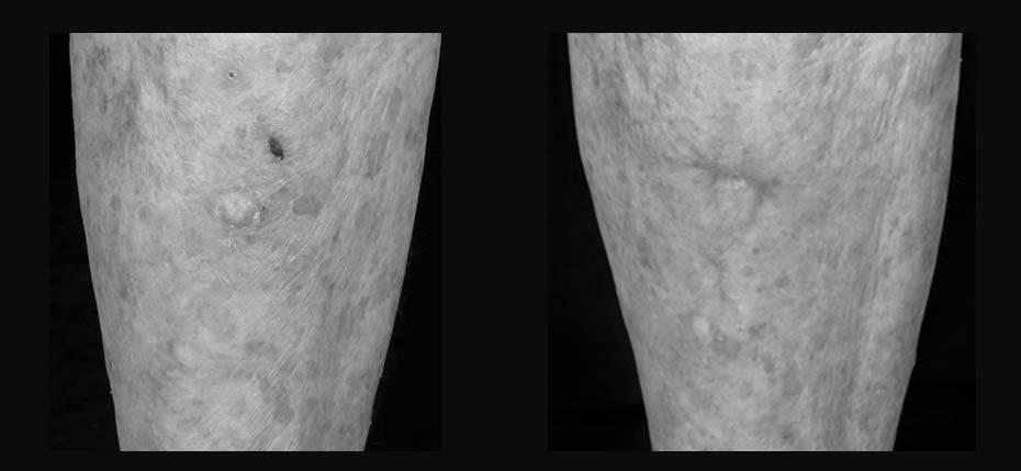 skin-surgery-2017-9