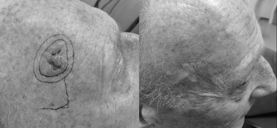 74 year old man with a skin cancer on his scalp, removed and reconstructed with a local flap