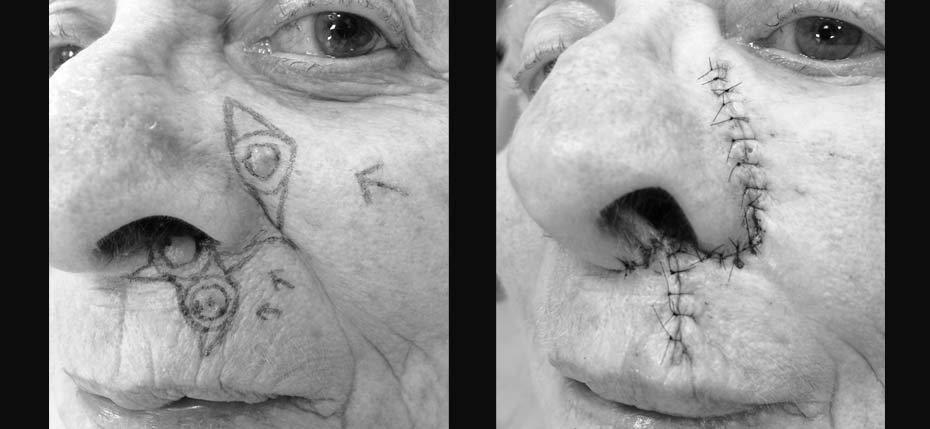 skin-surgery-2018-3