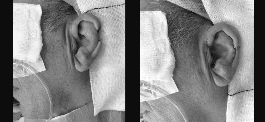 74 year old man with a skin cancer on his ear, removed and reconstructed with a helical rim advancement flap