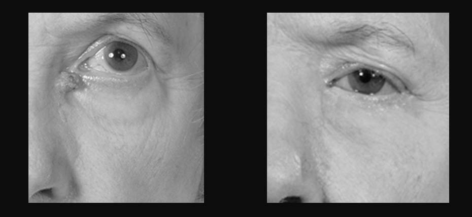 Lady with a post BCC on her lower eyelid reconstructed with a local flap