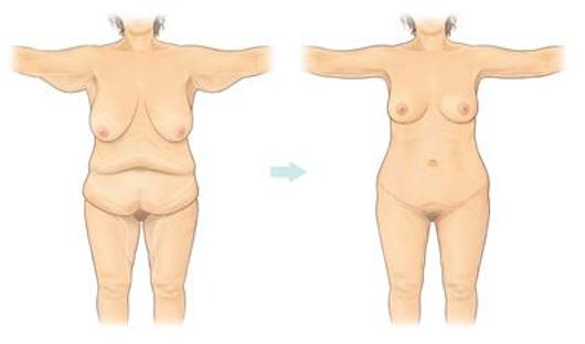 Body Reshaping