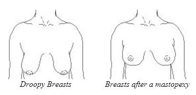 Breast Uplift1