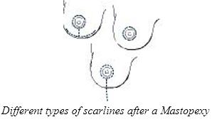 Breast Uplift2