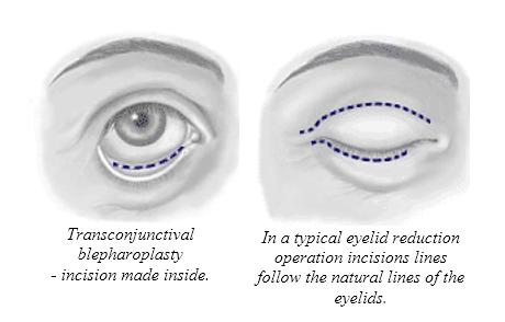 Eyelid Surgery2
