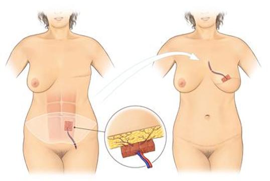 Reconstuctive Surgery 4