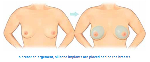 breast augmentation – 1