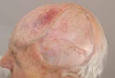 skin-cancer—stsg-4